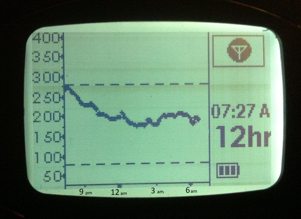 CGM trace for DIA test - Copy IMG_1578